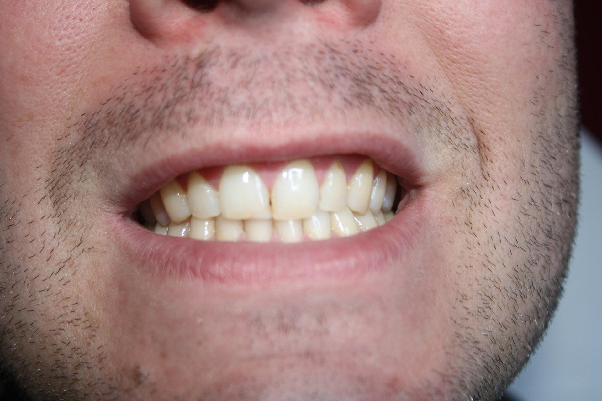 Tanden Bleken Duiven