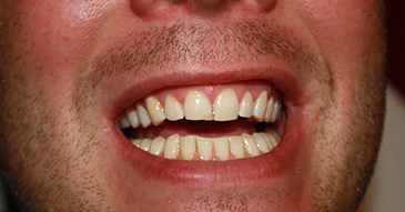 Tanden bleken Velp
